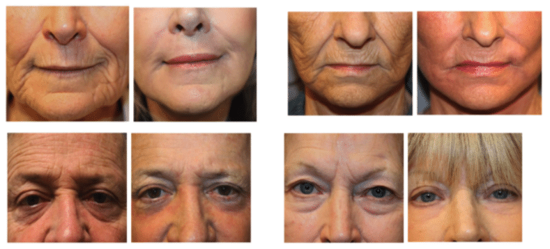 J Plasma Renuvion Before & After Skin Resurfacing