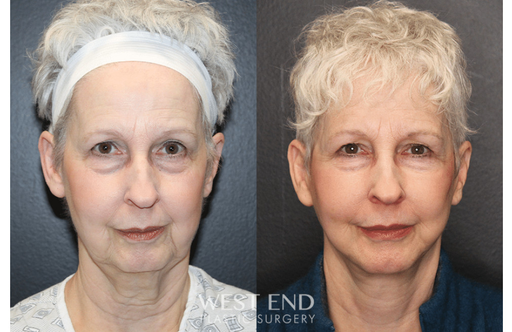 Facial Rejuvenation Before And After Gallery West End Plastic Surgery