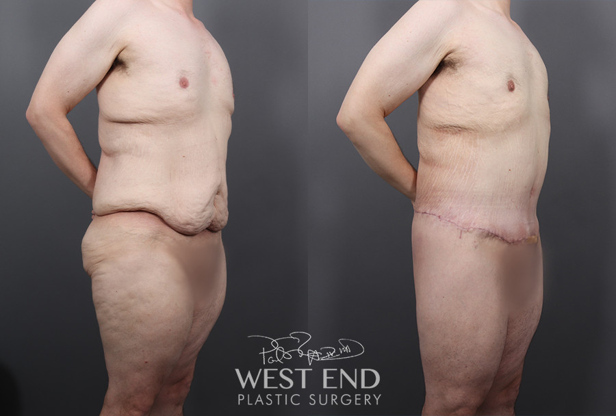 Post-Bariatric: Lower Body Lift, Liposuction & Renuvion Skin Tightening