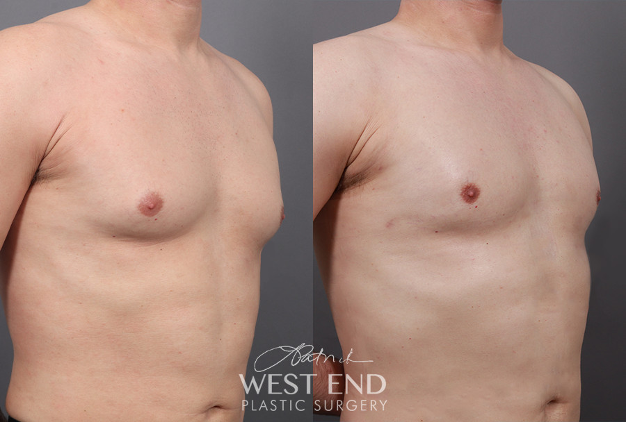 Gynecomastia (with Liposuction & Renuvion)